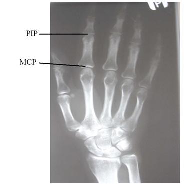 artroza v ruce